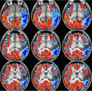 UHN fMRI Scans